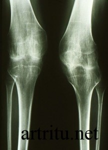 Изображение - Артрит суставов диагностика arthritis-Xray1-216x300