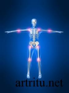 Артриты дифференциальная диагностика