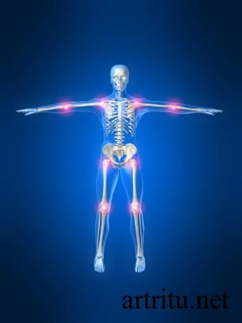 Диагностика и лечение артрита, вызванного инфекциями