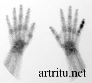 Изображение - Артрит суставов диагностика arthritis-scintigraphy-300x271