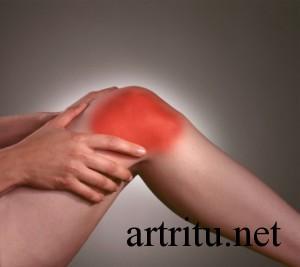Симптомы и лечение артроза суставов
