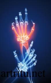 Виды инфекционных артритов