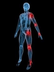 Вирусные артриты