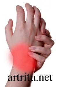 Как выявить инфекцию при артрите thumbnail