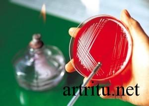 Диагностика инфекционного артрита