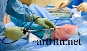Артроскопия для диагностики артрита коленного сустава