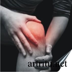 Симптомы коленного артрита