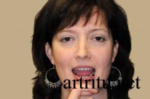 Зарядка при артрите
