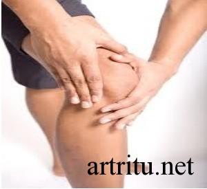 Острая форма аллергического артрита