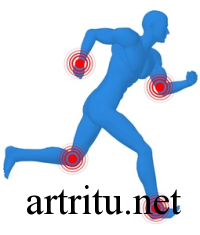 arthritis-gymnastics