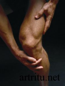 Чем артрит отличается от артроза