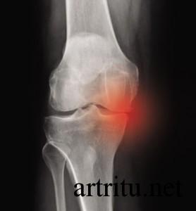 Рентген для диагностики артритов и артрозов