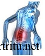 Поражение позвоночника при псориатическом артрите