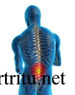 Действие артрита на позвоночник