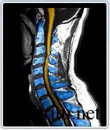 Артрит спины