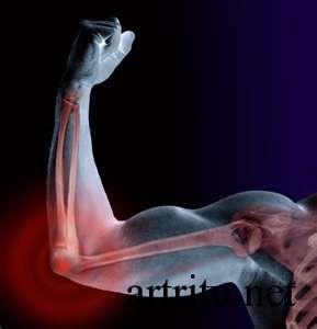 Травматические поражения суставов