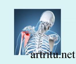 Классификация заболеваний суставов - дегенеративно-дистрофические заболевания
