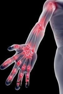 Факторы риска возникновения артрозо-артрита