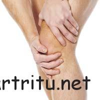 Виды осложнений артрита