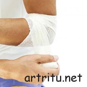 Бурсит - методы лечения