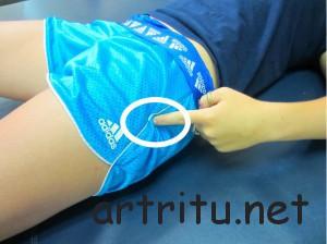 Бурситы в области тазобедренного сустава