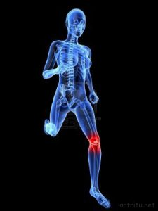 Остеохондропатия большеберцовой кости