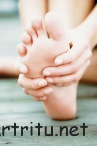 Лечение остеохондропатии пяточной кости