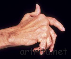 Осложнения ревматоидного артрита
