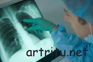 Поражение дыхательной системы при осложненном артрите