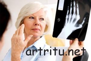 рентгенологическое исследование суставов