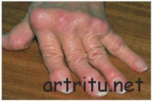 Диагноз ревматоидного артрита