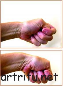 Причины тендинита мышц-разгибателей запястья