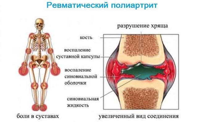 Симптомы ревматического полиартрита