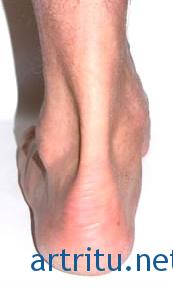 Тендинит ахиллова сухожилия и сухожилий подошвенных мышц (талалгия)