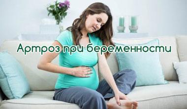 Артроз при беременности
