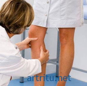 Что делать для профилактики артрита