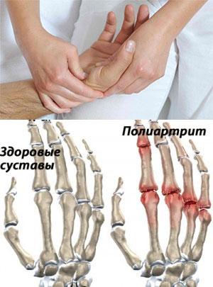 Лечение и прогноз полиартрита