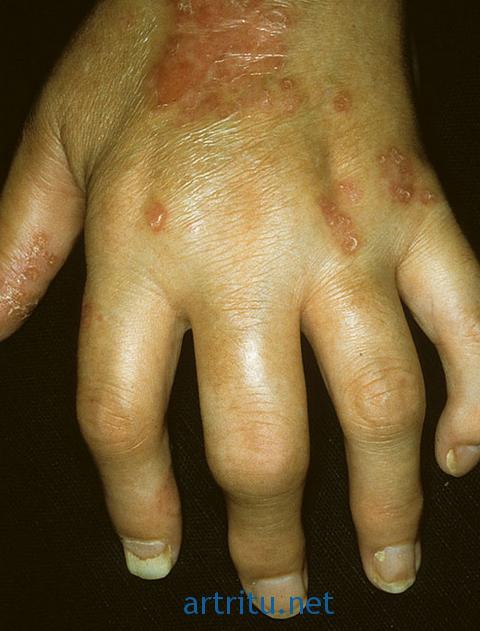 Псориастический артрит