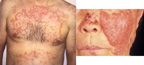 Ревматизм кожи и подкожной клетчатки