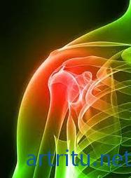 Плечевой артрит — причины, симптомы и лечение