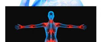 Симптомы нейроревматизма