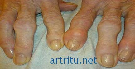 Виды артрита: подагрический артрит