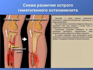 Патогенез остеомиелита