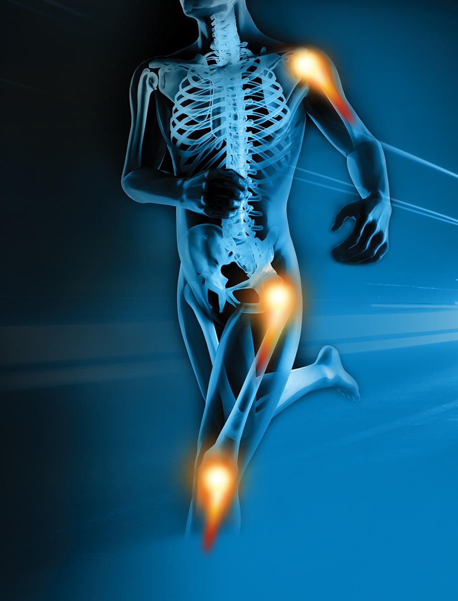 Физиотерапия при артрите и артрозе, методы - orientandoo.com