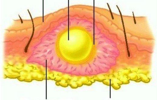 Инфекционные осложнения артрита - флегмоны