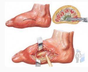 Флегмона как осложнение артрита