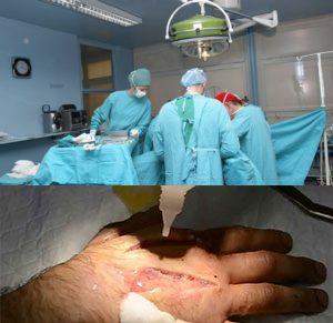 Лечение флегмон