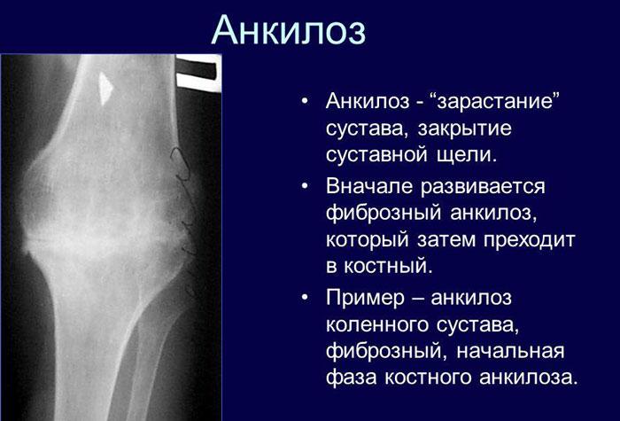 Изображение - Анкилоз сустава лечение ankiloz-opredelenie