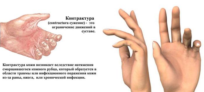 Контрактура симптомы и лечение