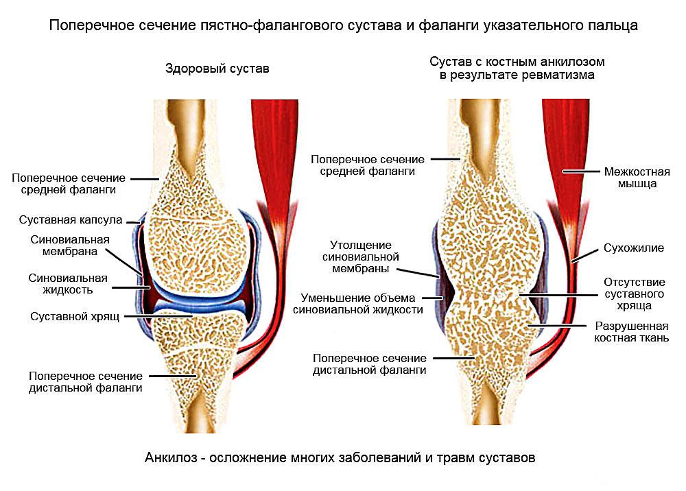 Причины анкилозов суставов